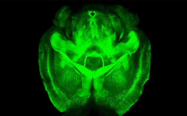This undated image provided by Karl Deisseroth's lab shows a three-dimensional rendering of clarified mouse brain seen from below. (AP-Yonhap News)