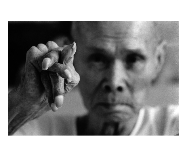 A fisherman shows his crippled hand from mercury poisoning in Minamata, Japan in this photo taken by Shisei Kuwabara in 1970. (Photographic Artist Association of Korea)