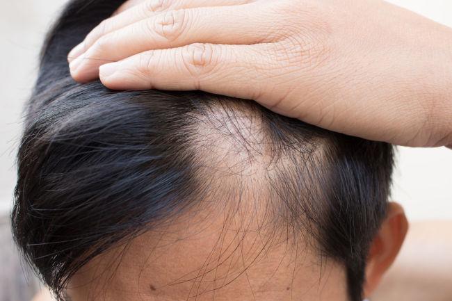 Dutasteride Hair Loss