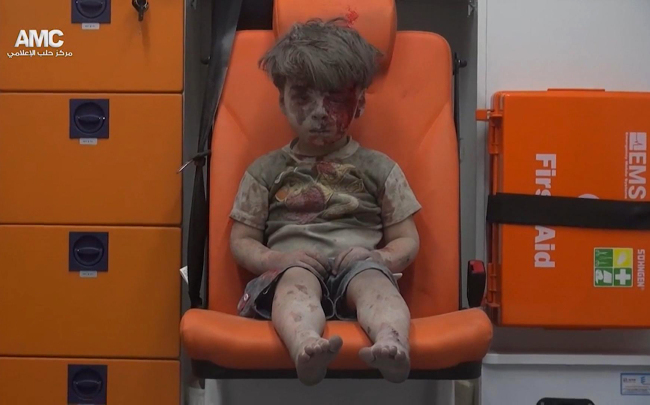 5-year-old Omran Daqneesh sits in an ambulance after being pulled out of a building hit by an airstirke, in Aleppo, Syria, Wednesday, Aug. 17, 2016. (AP-Yonhap)