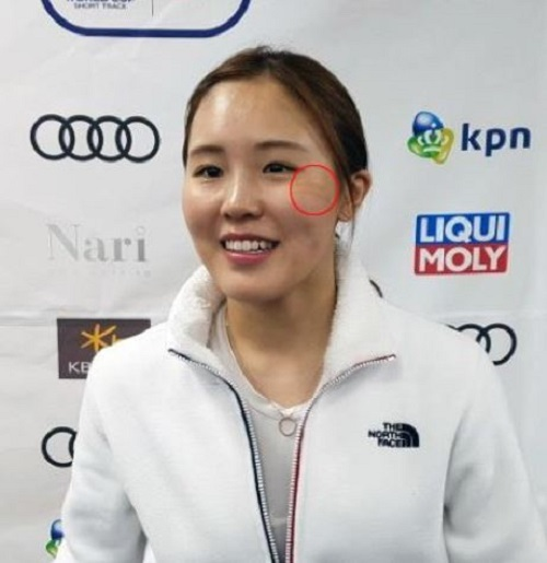 South Korean short track speed skater Kim A-lang speaks to reporters during International Skating Union World Cup Short Track Speed Skating at Mokdong Ice Rink in Seoul on Nov. 17, 2017. The red circle shows bandages over a scar Kim sustained after taking a skate blade to the face during an earlier race in Seoul. (Yonhap)