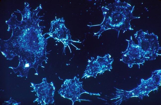 Cancer cells (FreeQration)
