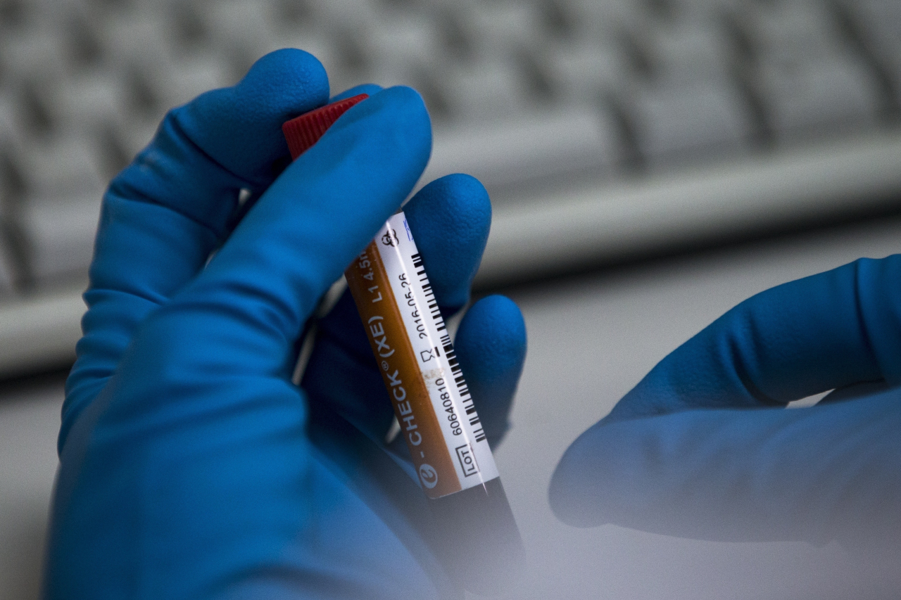 In this May 24, 2016 file photo an employee of the Russia's national drug-testing laboratory holds a vial in Moscow, Russia. Russia is accused of manipulating an archive of doping data from a laboratory in Moscow, which was meant to be a peace offering to the World Anti-Doping Agency to solve earlier disputes. (AP-Yonhap)