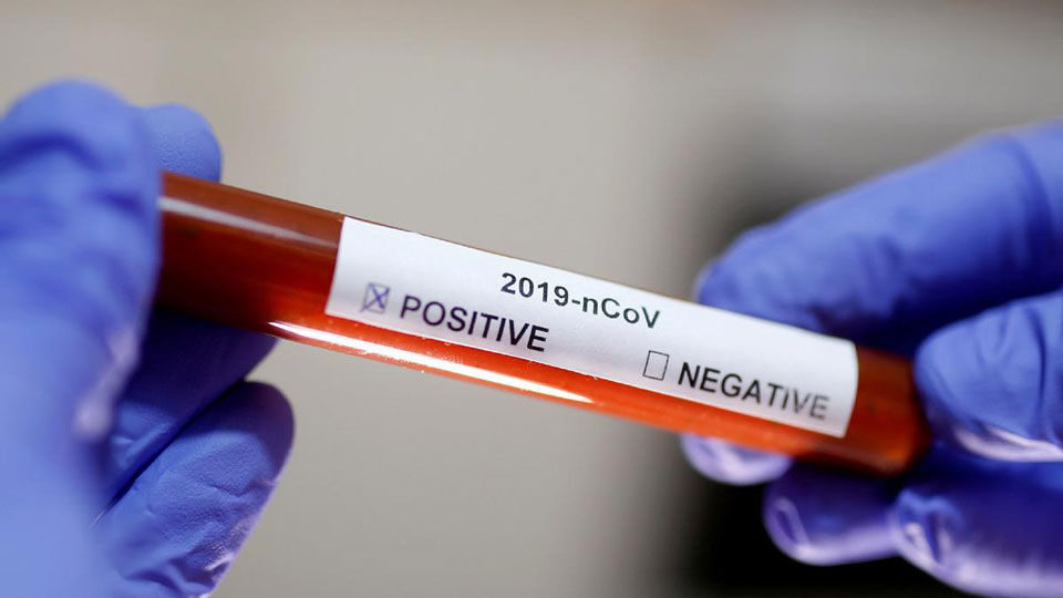 Possible coronavirus treatment clinical trial begins in United States