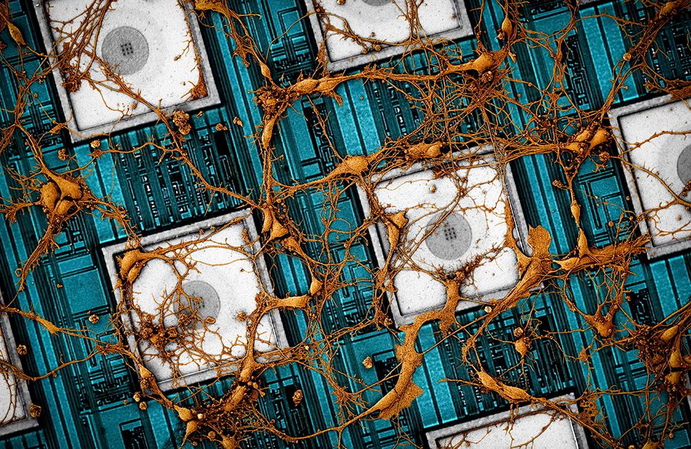 Image of rat neurons on CMOS nanoelectrode array. (Samsung Electronics)