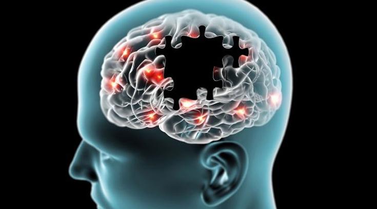 '활력'과 '행복'의 호르몬, 도파민 수치 높이는 식습관은?