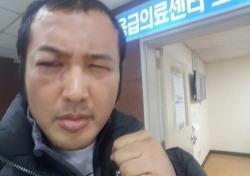 """김보성, '로드FC' 부상 심각…""""평생 오른쪽 눈 함몰 상태로 살아야"""""""
