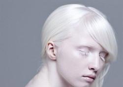 백색증, 모델 나타샤 쿠라모바도 앓고 있는 그 병…어떤 상황?