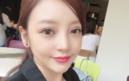 '안검하수' 구하라, 달라진 눈매