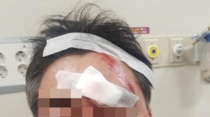 [단독]민주당 소속 구의원 '공무원 폭행...