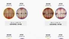 흡연 때문에 변색된 치아, 치아미백으로 하얗게!