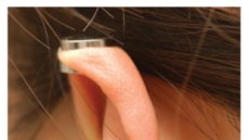 자꾸 재발하는 귀걸이 후유증 왜...