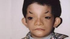 희귀질병 유전자 발견, 주요질병 완치길 열리나?