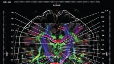 가천대 뇌과학연구소 연구팀, 세계 최초로 '뇌신경 지도' 제작
