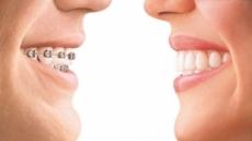 치아교정, 이제는 투명교정장치'인비절라인'으로 심미성까지