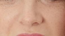[건조한 늦봄, 삐걱대는 건강 ①] 갱년기 여성 입안 화끈하게 하는 '구강작열감증후군'