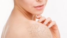 [난방기구, 피부엔 毒 ②] 겨울에 때 자주 밀면 피부건조증 악화된다