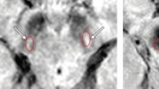 국내연구진, MRI 검사로 렘수면 행동장애 환자 파킨슨병 진행 여부 예측