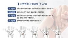 손목 희귀질환 '키엔벡병', 진행과정에 따라 치료방법 달리해야