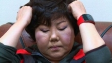 쿠싱증후군 이은하 11kg 감량…이명증은 더 심해져