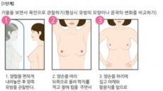 [김태열 기자의 생생건강] 전 여성에게 가장 위협적인 암인 '유방암', 조기발견만하면 생존율은 높다
