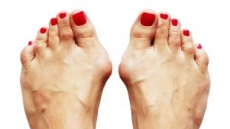'당신의 발건강은 안녕하십니까?' 족저근막염VS무지외반증