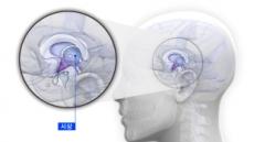 조현병, 뇌 시상의 미세구조 감소가 원인?