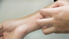 무좀ㆍ피부 건조증과 오인?…'집계 3배' 건선 환자 50만명?