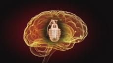 일교차 큰 어느날 갑자기 '핑'…뇌가 위험하다