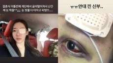 '예비신부' 송다예 피멍든 눈 안대…대체 무슨 일?