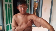 10살 몸무게가 192㎏?…印尼소년 위 축소 수술 후 87㎏ 변신