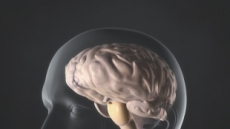[오늘은 뇌졸중의 날 ②]조기발견 어려운 뇌졸중…어눌한 말투, 신체 마비 나타나면 의심