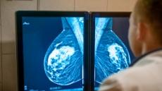 유방암 환자가 하는 '여성호르몬 수용체 검사', 영상 촬영으로 가능