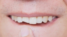 '치아 외상' 환자, 활동 많아지는 봄에 증가