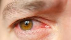 입안 헐고 눈 충혈, 단지 피곤해서?…'베체트 포도막염' 의심