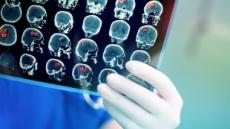 폐암 환자에 빈번한 '뇌 전이'…초기부터 적극적인 치료 필요