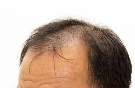 '대머리 정복' 국내 연구진 모낭 재생 '탈모치료 물질' 개발