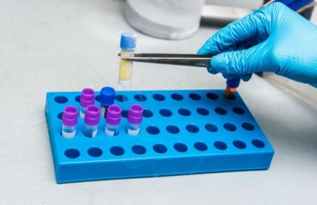 [제약톡톡] 에스티팜, 외국산 점령한 HIV 치료제 시장에 도전한다