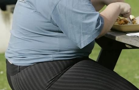 '치료 목적' 고도비만 수술, 내년부터 건보 적용