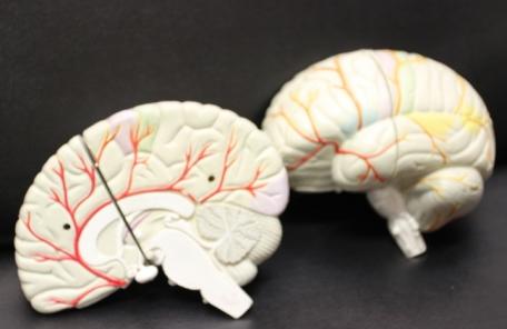 [생생건강 365] 뇌내혈관 동맥경화증에 대해 아시나요?