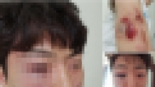 보이스피싱범 쫓던 경찰, 무고한 시민 폭행…내부 감사 착수