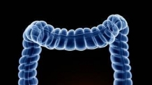 (주말생생)위암 사망률 추월한 대장암, 예방과 치료법은?