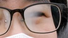 日생생/온 10:00 [미세먼지, 건강관리 포인트 ②] 뻑뻑하고 심한 통증…안구건조증일수도