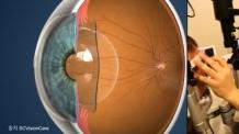 렌즈삽입술(ICL) 수술 전/후 반드시 체크해야 할 주의사항