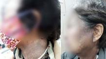 얼굴 검어지고 발진까지…헤나 염색제 정부합동점검