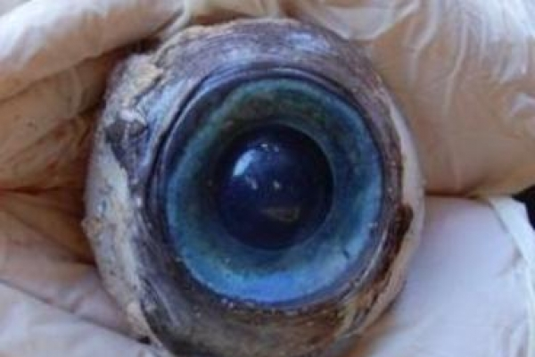 Mystery of giant eyeball solved