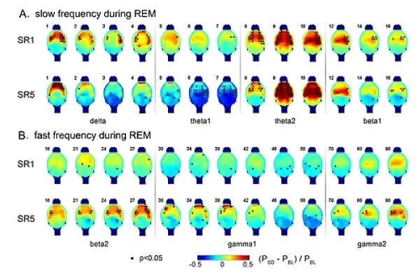 Scientists discover REM sleep's role in memory development