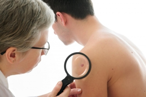 Skin cancer cases soar some 40% over 4 years