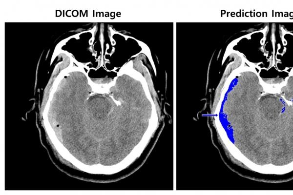 AI will save those who suffer cerebral hemorrhage: SK C&C