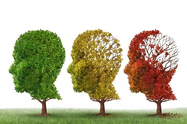 Half of Alzheimer's patients show mild symptoms of dementia